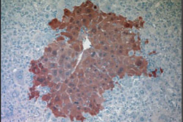 AAV Gene Repair of HT1