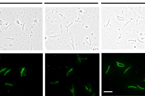 Monoclonal Antibody Blocking of Malaria in FRG Mice